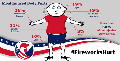 Firework injuries
